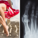 Шишка на ноге – наследственность или расплата за стремление к красоте?