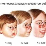 Как вылечить гайморит у ребенка?