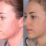 Демодекоз или подкожный клещ на лице: симптомы, стадии, лечение